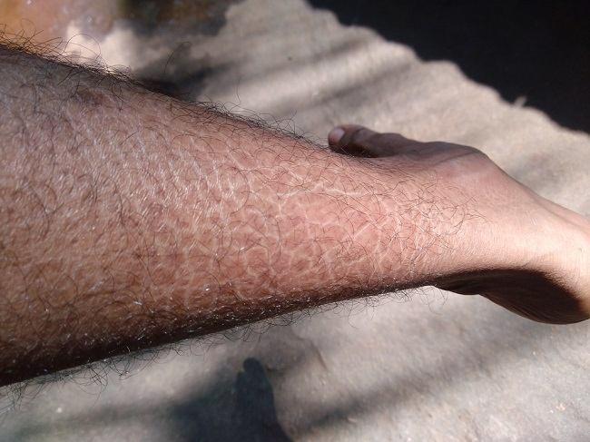 ikiosis vulgaris comp