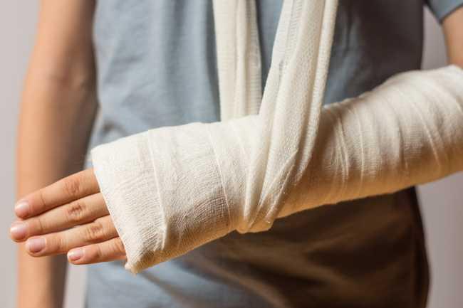 แขนหัก