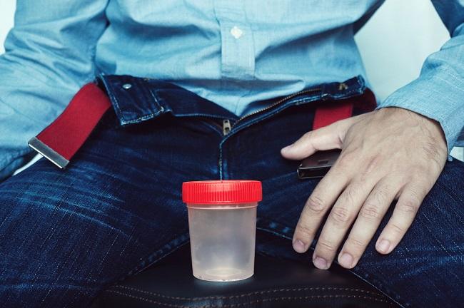 Ketahui Hal-hal yang Berkaitan dengan Pemeriksaan Sperma - Alodokter