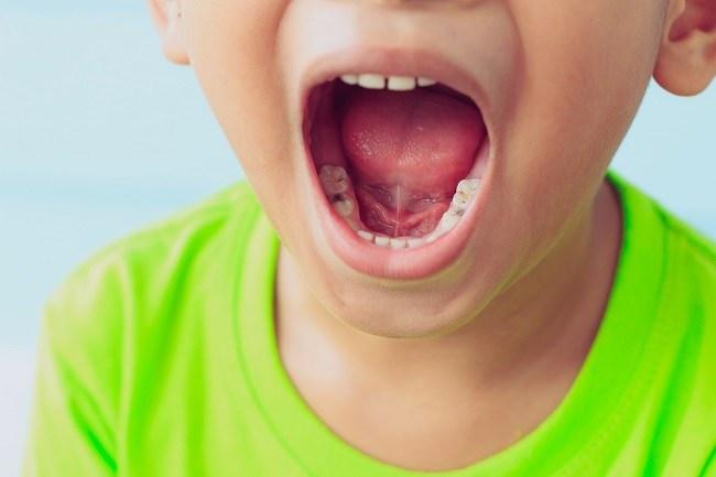 Bahaya di Balik Gigi Berlubang pada Anak - Alodokter