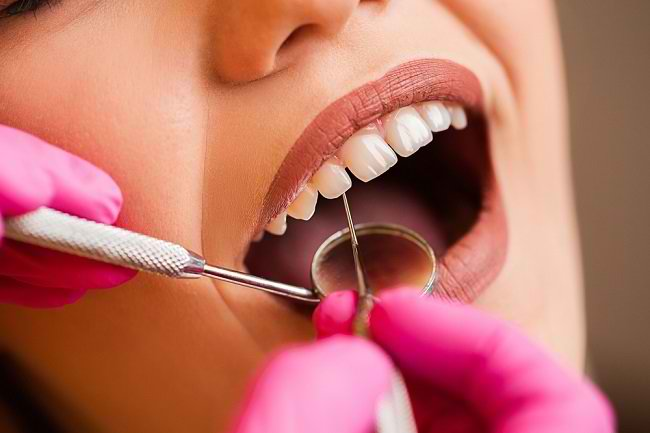 Kenali Cara Menghilangkan Karang Gigi dengan Scaling - Alodokter