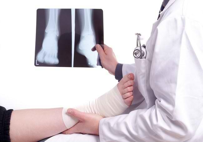Prosedur Pemasangan Pen untuk Mengobati Patah Tulang - Alodokter