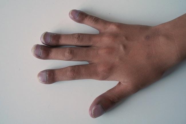 Penyakit Jantung Bawaan - Alodokter