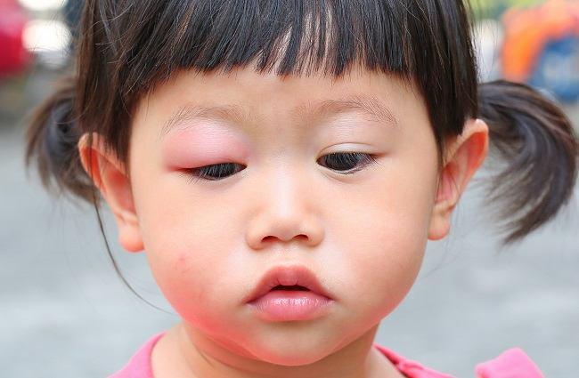 Ini Penyebab dan Cara Mengatasi Infeksi Mata pada Anak - Alodokter