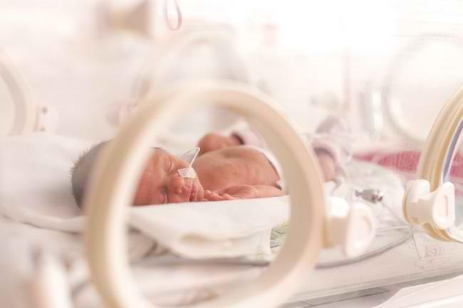 Mengenal Lebih Jauh Retinopathy of Prematurity (ROP) - Alodokter