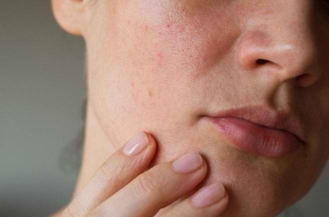 Penyakit Ini Menimbulkan Bintik Merah Pada Kulit Dan Bernanah Alodokter