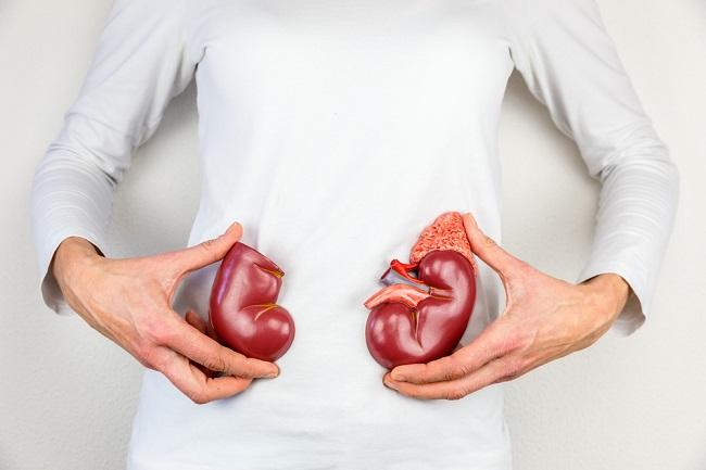 Ini Syarat Lengkap untuk Donor Ginjal - Alodokter
