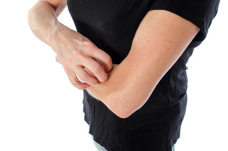 Gatal Berair Dapat Disebabkan Beberapa Penyakit Ini - Alodokter