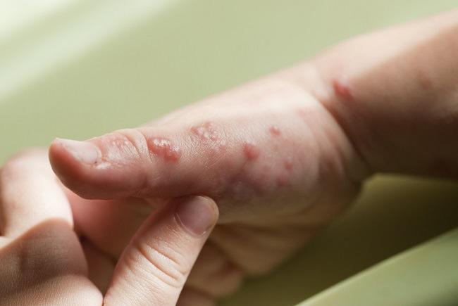 Memahami Gejala Dan Obat Herpes Kulit Yang Tepat Alodokter