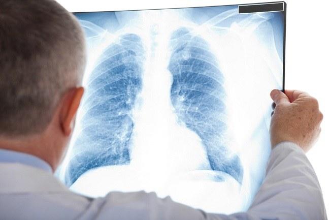Mengenal Bronkopneumonia dan Penyebab yang Mendasarinya - Alodokter