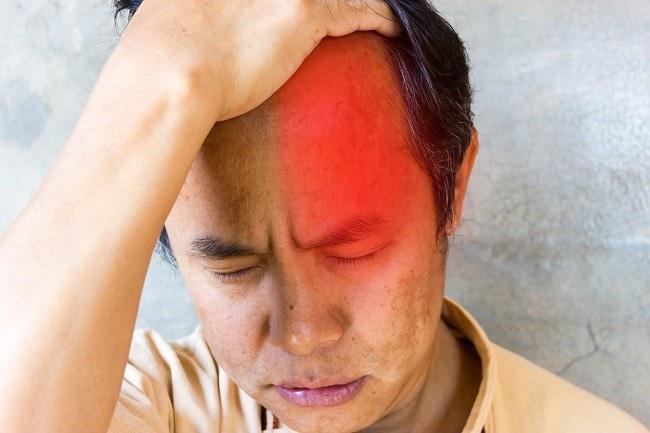 Sakit Kepala Cluster Gejala Penyebab Dan Mengobati Alodokter