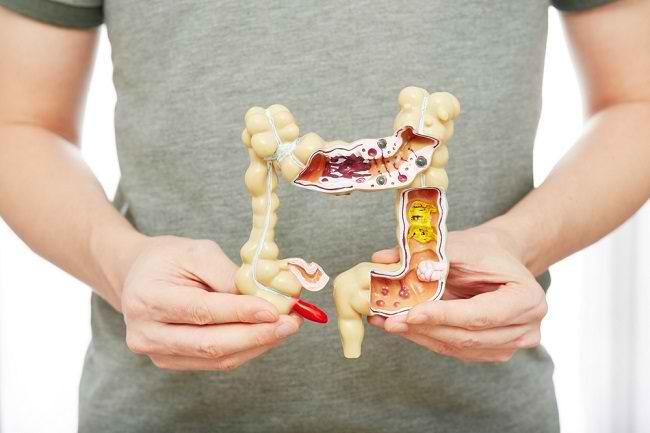 Mengetahui Anatomi dan Fungsi Usus Besar - Alodokter