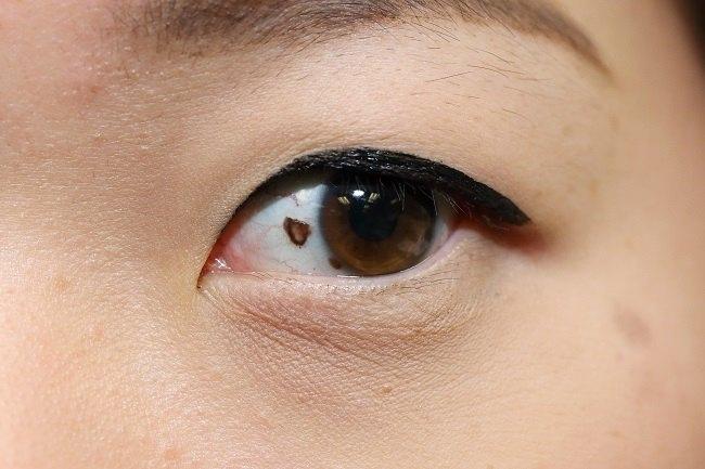 Kanker mata melanoma