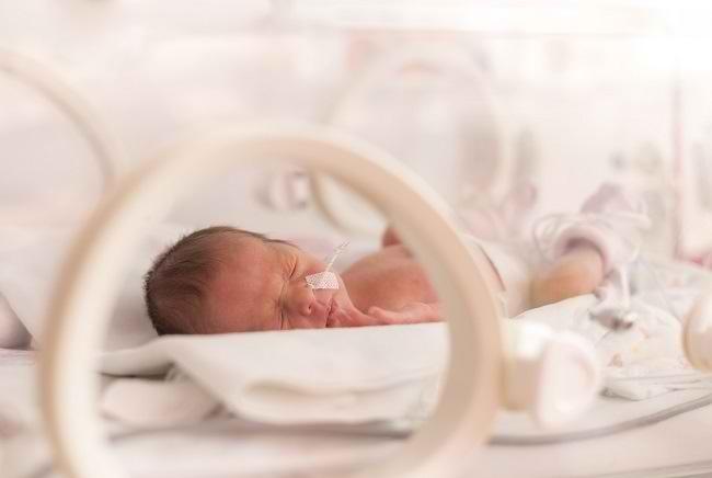 Susu Formula untuk Bayi Prematur - Alodokter