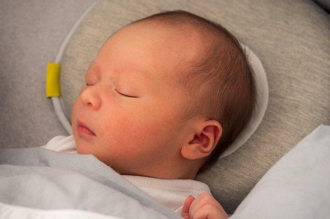 Ini penyebab Kepala Bayi Peyang dan Cara Mengatasinya - Alodokter