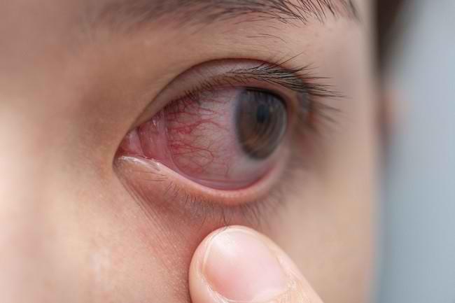 Beragam Cara Mengatasi Mata Merah - Alodokter