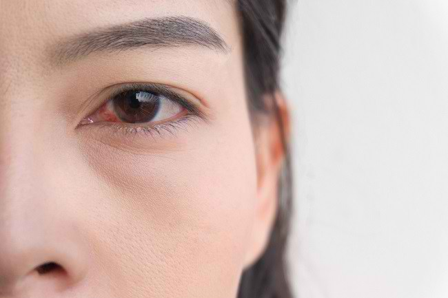 Mengenal Penyebab Mata Merah - Alodokter