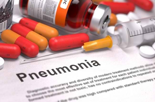 Ketahui Obat Pneumonia Sesuai Penyebabnya - Alodokter
