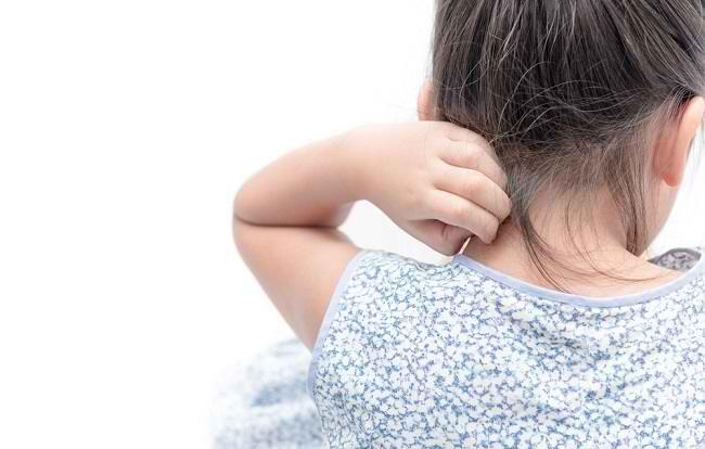 Gejala Alergi Obat pada Anak yang Harus Diketahui para Orang Tua - Alodokter
