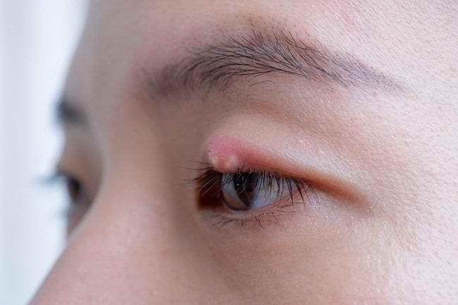 Penyebab Sakit Mata dan Pengobatannya - Alodokter