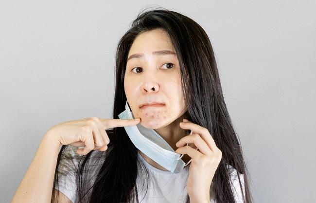 Mengenal Maskne, Jerawat Akibat Penggunaan Masker - Alodokter