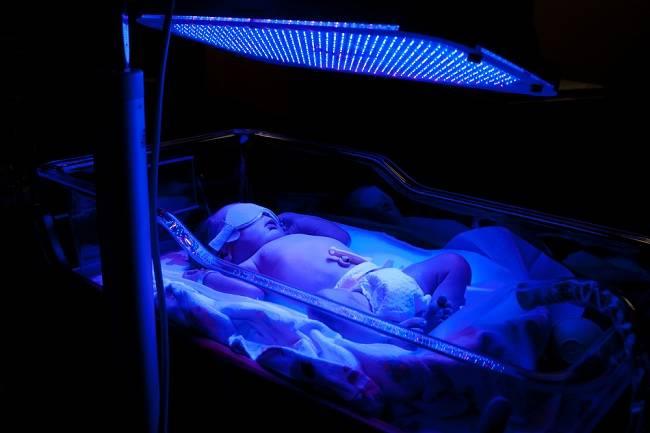 Manfaat Fototerapi untuk Bayi Kuning - Alodokter