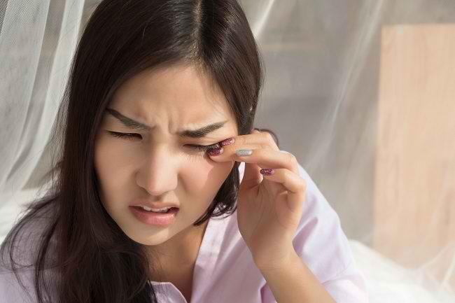 Yuk, Hentikan Kebiasaan Mengucek Mata agar Tidak Terkena Dampak Negatifnya - Alodokter