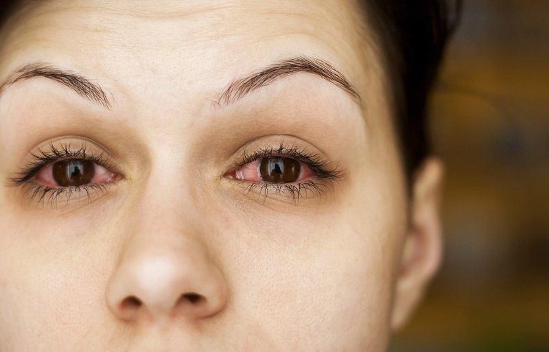 Jenis-jenis Radang Mata dan Cara Mengatasinya - Alodokter
