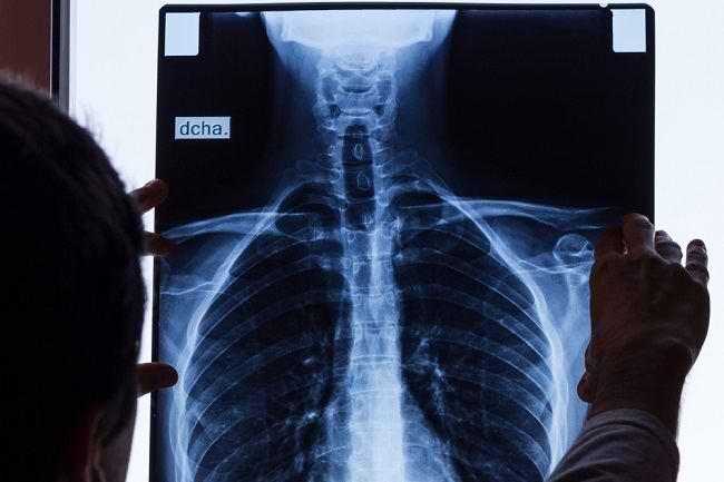Kenali Risiko Berbahaya Akibat Patah Tulang Rusuk - Alodokter
