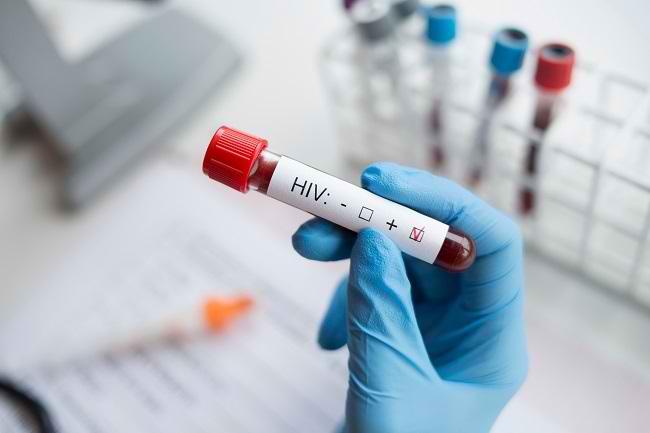 Tes HIV dan Hal-hal Penting yang Ada di Dalamnya - Alodokter