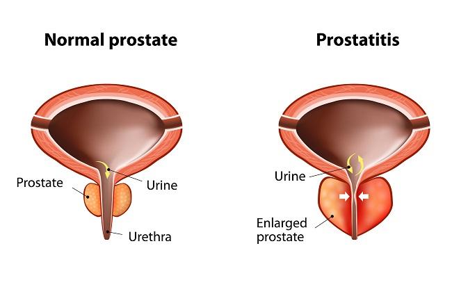 A fertőzéseket okozó prostatitis viszketés a hátsó folyosón a prosztatitis miatt