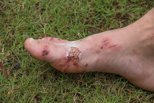 infeksi kulit - alodokter