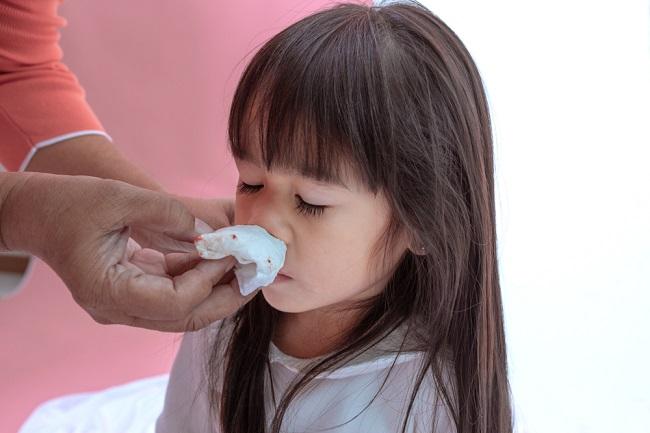 Ketahui Penyebab Mimisan pada Anak dan Cara Menanganinya - Alodokter