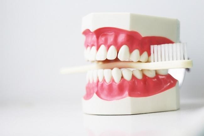 Kenali Penyebab Gigi Hitam dan Perawatannya - Alodokter
