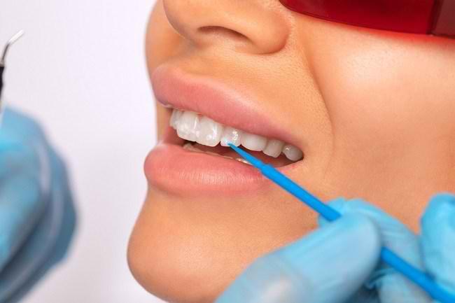 Penyebab Munculnya Noda pada Gigi dan Cara Mengatasinya - Alodokter