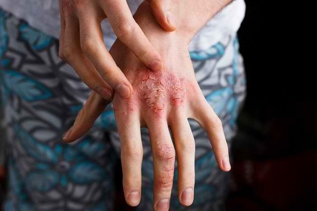 Macam-Macam Dermatitis yang Perlu Anda Ketahui - Alodokter
