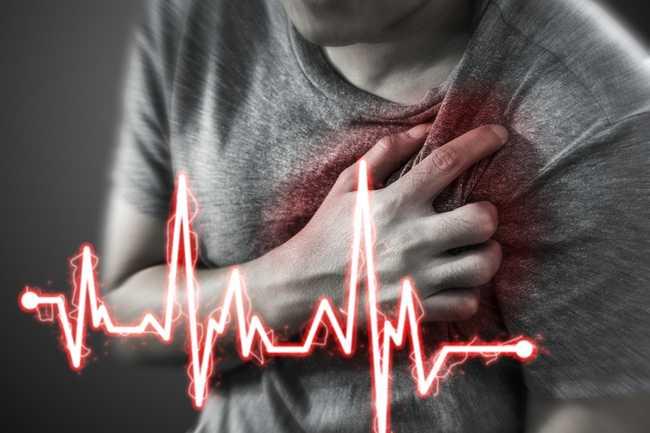 Cardiogenic-Shock