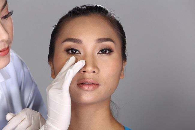 Mengenal Septoplasty, Operasi untuk Memperbaiki Tulang Rawan Hidung - Alodokter