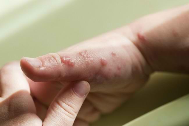 Penanganan Herpes pada Bayi Sebaiknya Jangan Ditunda - Alodokter