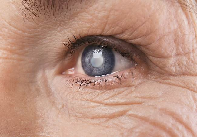 Kenali Pemicu Katarak Kortikal dan Cara Mencegah Penyakit Ini - Alodokter