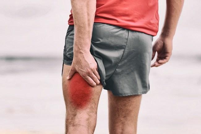 Hamstring Injury - alodokter