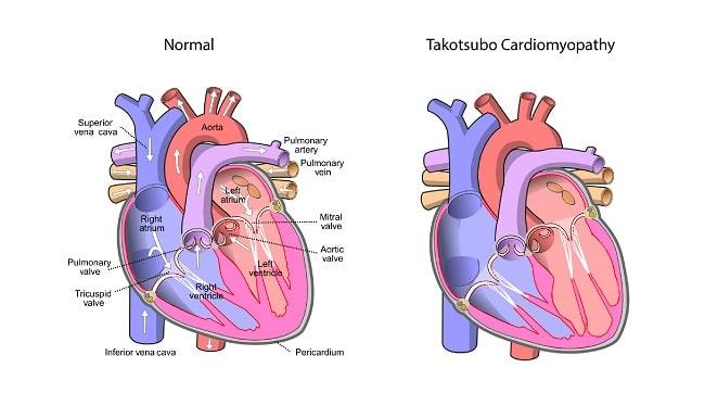 takotsubo cardiommyipathy-01-min
