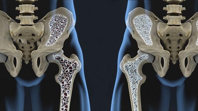 Kenali Jenis Osteoporosis dan Cara Mencegahnya - Alodokter