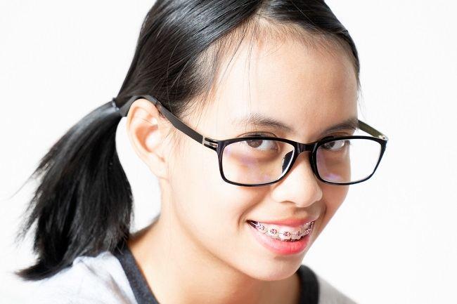 Kapan Anak Boleh Memakai Behel Gigi? - Alodokter