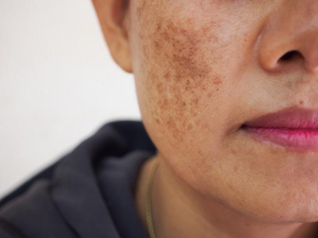 Xeroderma Pigmentosum, Penyakit Kulit Sensitif terhadap Sinar Matahari - Alodokter