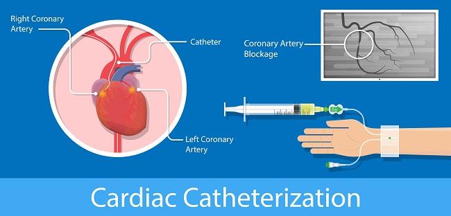 Teknik Kateterisasi Jantung Alomedika