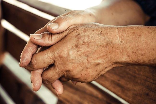 Seputar Penyakit Hiperpigmentasi Kulit Dan Cara Mengatasinya Alodokter