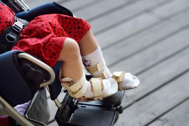 Mengenal Distrofi Otot: Kelainan pada Otot yang Mengancam Nyawa - Alodokter