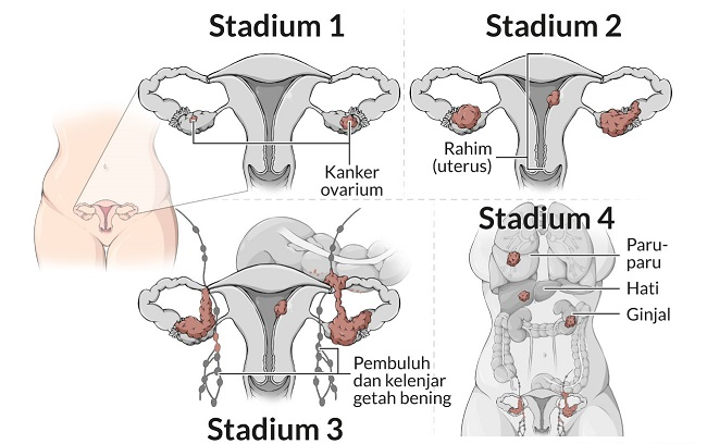 Alodokter - kanker-ovarium