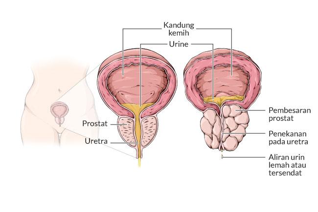 Bph Benign Prostatic Hyperplasia Gejala Penyebab Dan Mengobati Alodokter